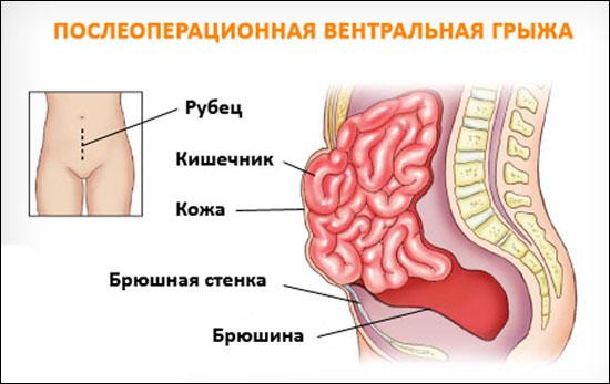 Лучшие способы отбеливания зубов - Виды отбеливания в